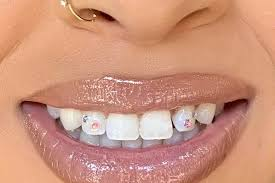 Tooth_Gems_by_Faith_-_Get_Your_Bling_On_Saviours_Photo_2_Enhanced